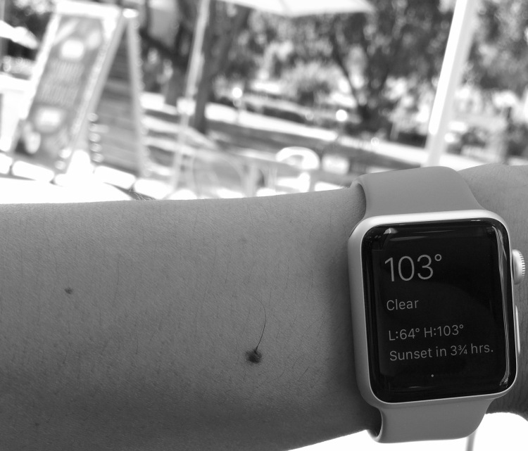 Apple Watch, hot or not?